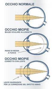 miopie ok terapie ce picături sunt necesare pentru vedere