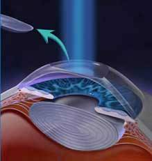 PRK: corneal EPithelium removal, to let the excimer laser correct Astigmatism