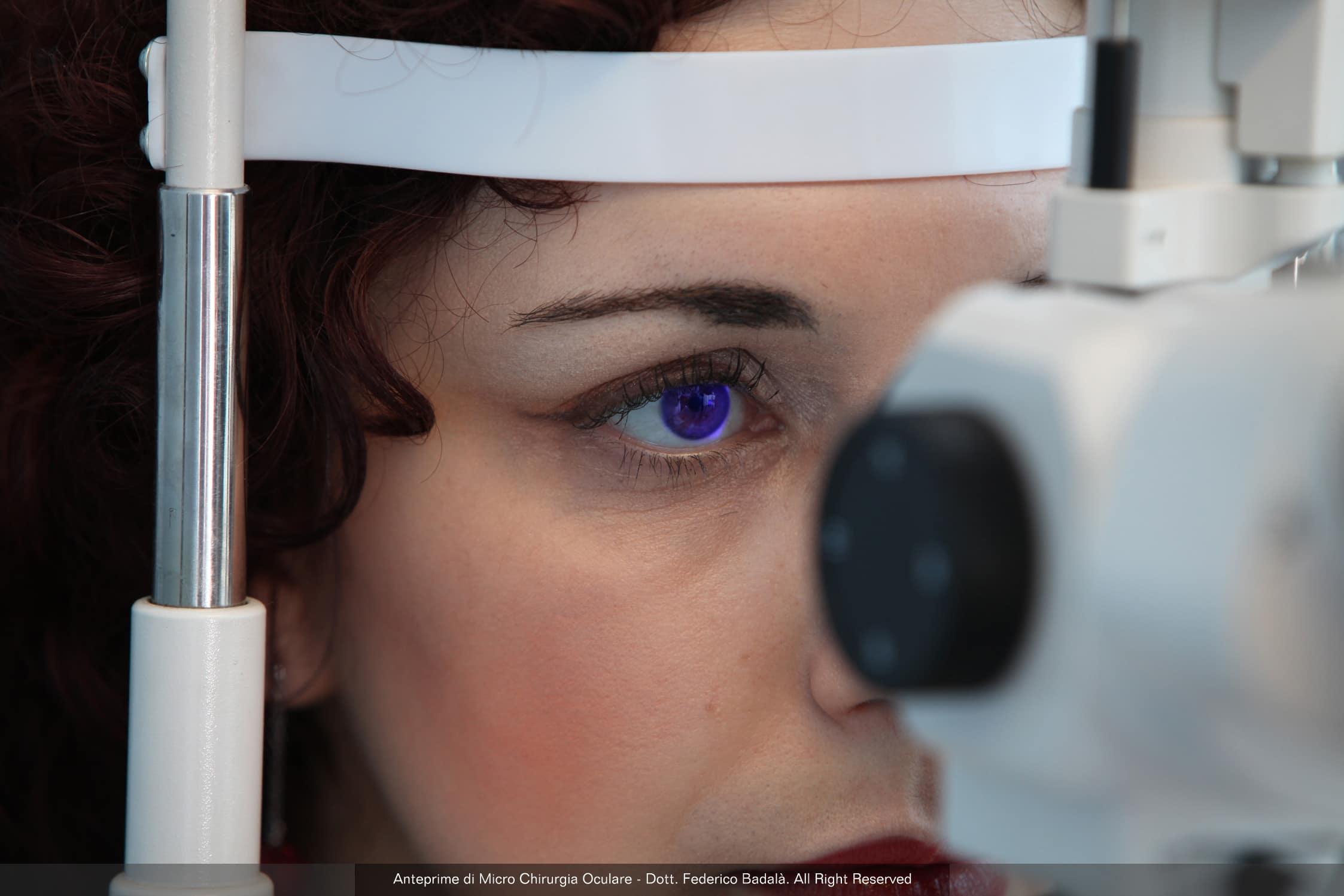 chirurgie ochi cu laser Am viziune minus cinci