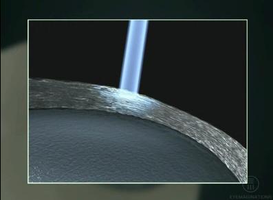 cura presbiopia con laser