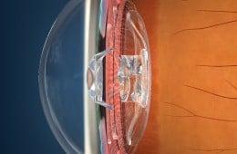 eyemax lens..