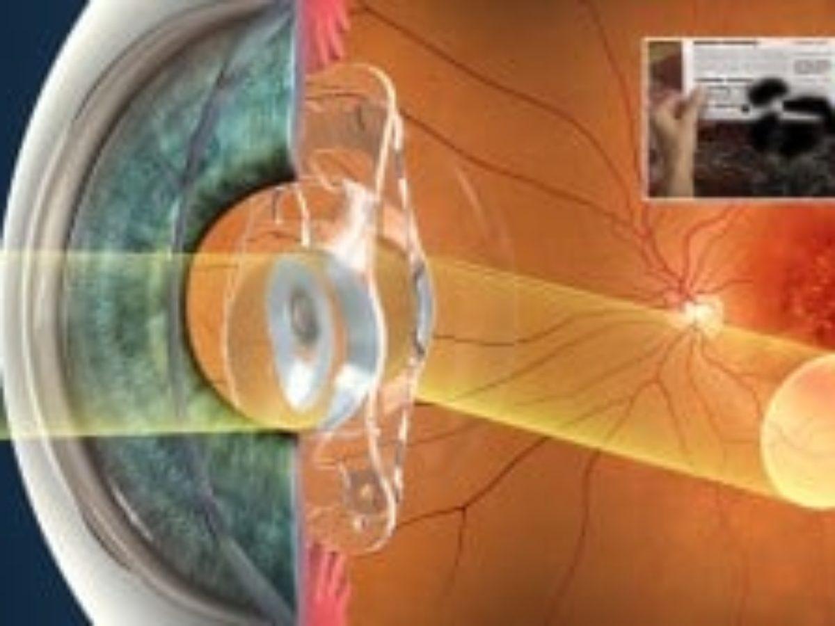 cum se vindecă vederea de 13 ani vedere tabel litere