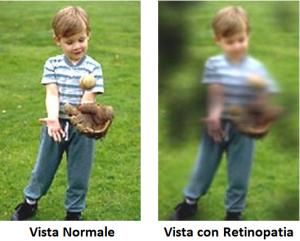 N.7 retinopatia