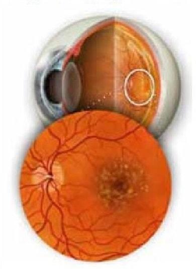 maculopatia secca