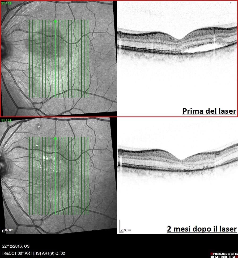 laser giallo prima e dopo