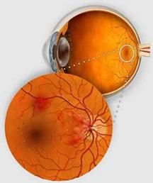 retinopatiadia