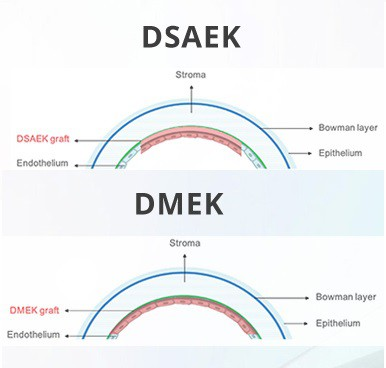 DMEK2 - Copia