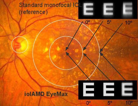 """EyeMax: alta qualità e """"wide angle"""""""