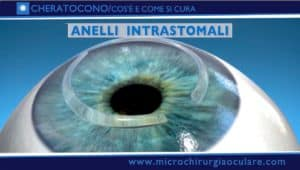 Anelli intrastomali